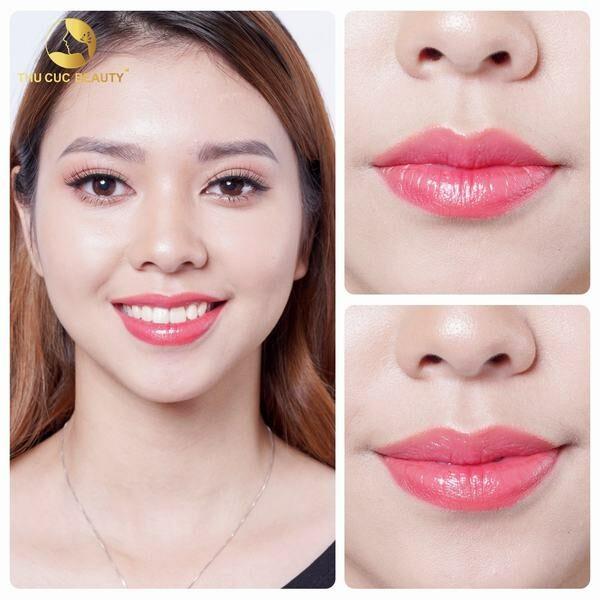 Phun môi giúp cải thiện màu môi, và tạo đường viền môi sắc nét, góp phần khắc phục những hạn chế của đôi môi lệch thiếu cân đối.