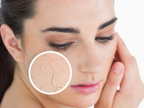 Mùa hanh khô đến đem lại cảm giác thô ráp, khó chịu cho làn da.
