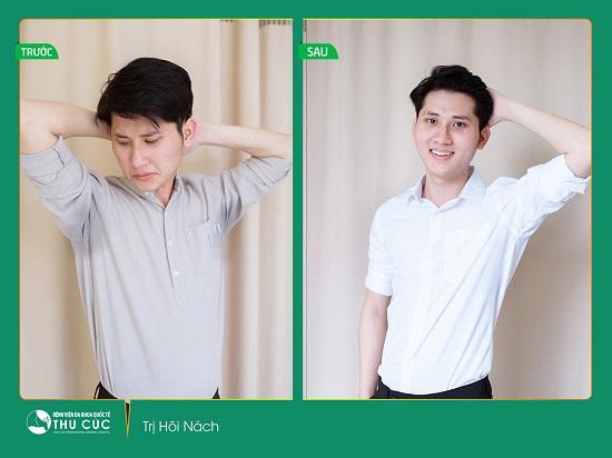 Điều trị hôi nách tại Thu Cúc Sài Gòn sẽ giúp bạn tự tin hơn rất nhiều trong cuộc sống (Lưu ý: Kết quả tùy thuộc cơ địa mỗi người)