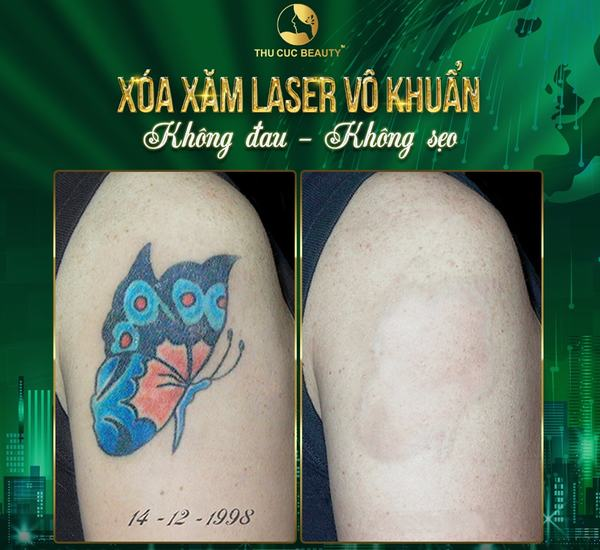 Xóa xăm Laser giúp loại bỏ khuyết điểm