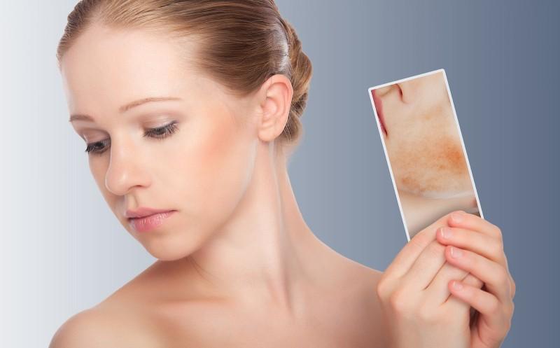 Bí quyết trẻ hóa làn da tại Thu Cúc Spa