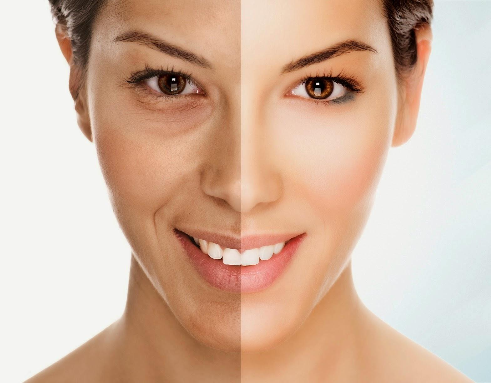 Làn da sau khi trẻ hóa bằng công nghệ Hifu sẽ có sự thay đổi rõ rệt, giúp bạn tìm lại sự tự tin, vẻ quyến rũ nữ tính