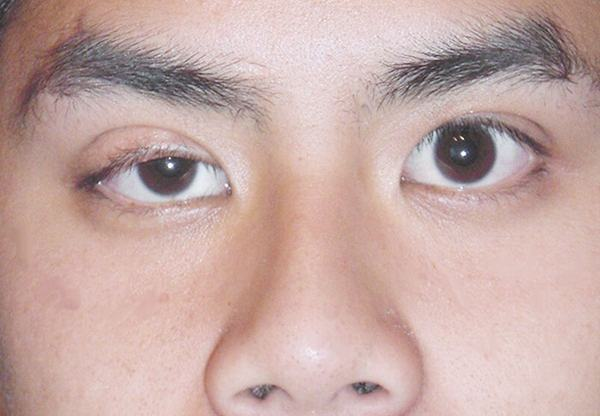 Một trường hợp sụp mí bẩm sinh bên mắt trái