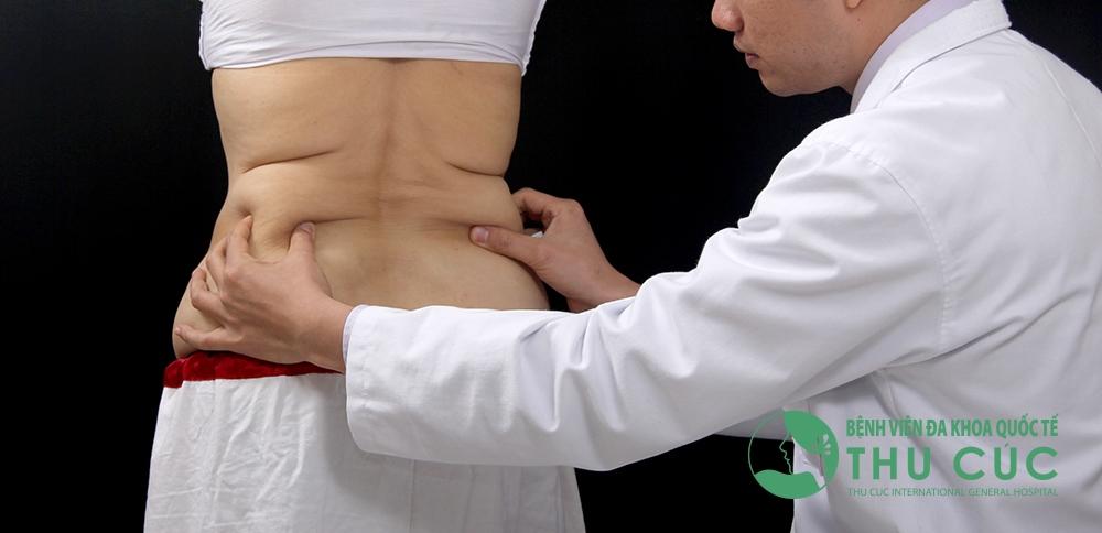 Bác sĩ sẽ thăm khám tình trạng mỡ dư thừa trên cơ thể để xác định lượng cần hút