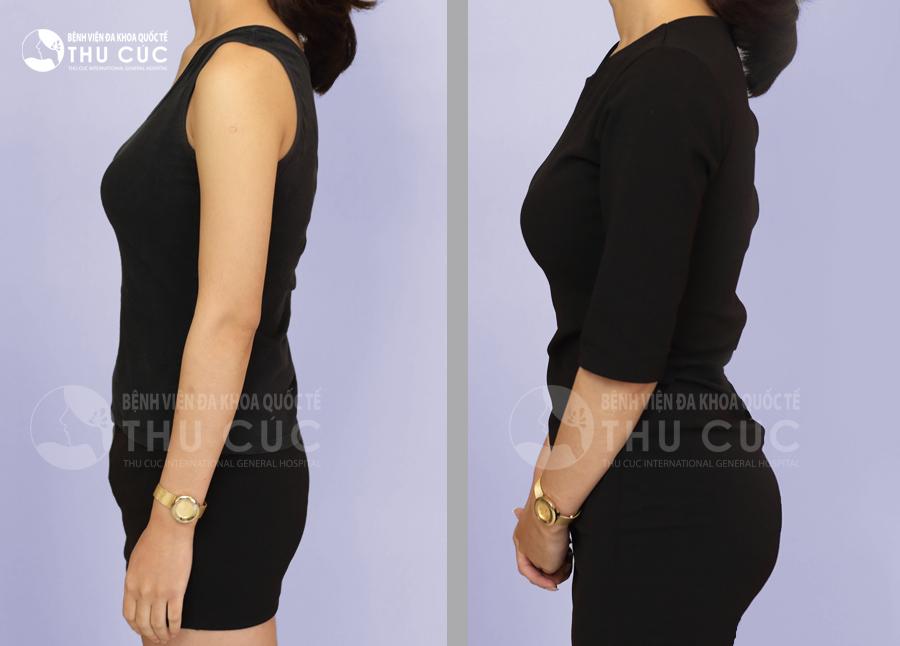 Sau phẫu thuật, bạn sẽ được sở hữu vòng ba tròn đầy lý tưởng, làm tăng sự quyến rũ và giúp bạn đẹp trong mọi loại trang phục