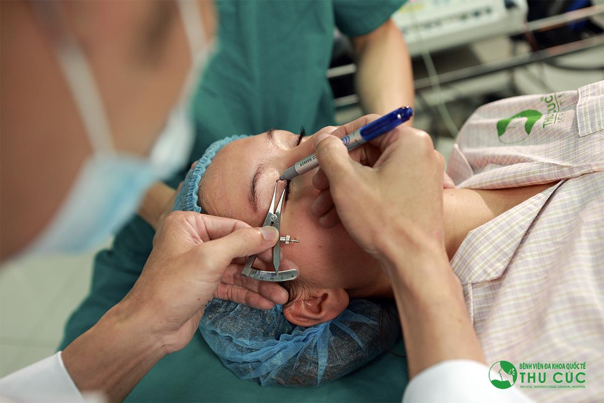Một khách hàng đang thực hiện thẩm mỹ mắt tại Thu Cúc