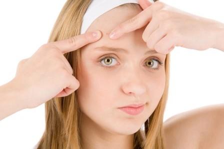 Cách trị sẹo mụn trên mặt?