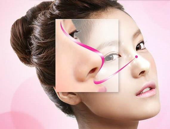 Nâng mũi sử dụng được bao lâu?