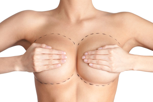 Nâng ngực bằng túi gel là phương pháp nâng ngực nội soi sử dụng chất liệu độn túi gel