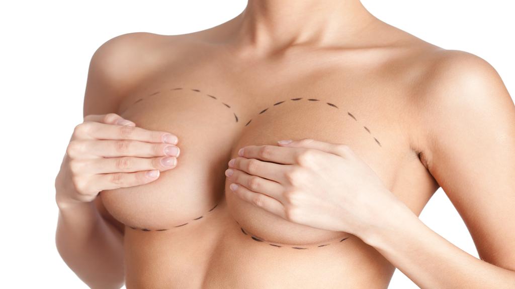 Nâng ngực dưới cơ khá được ưa chuộng bởi nó hoàn toàn tách biệt, không gây tổn hại đến tuyến sữa, không ảnh hưởng đến các dây thần kinh cảm giác