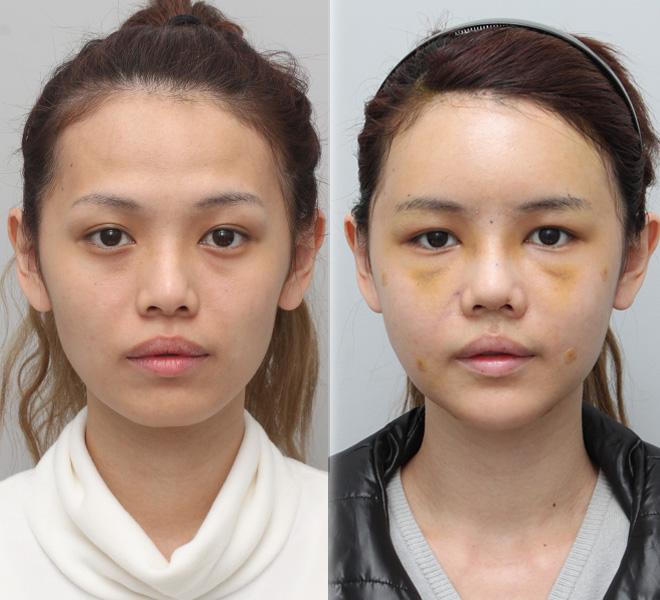 Trước khi phẫu thuật và 7 ngày sau khi phẫu thuật, mũi của Qiu Qiu đã được loại bỏ các vết khâu.