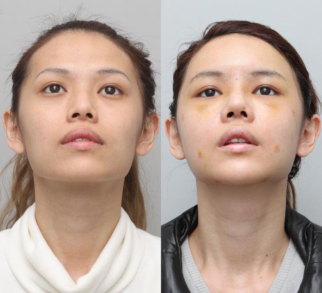 Bạn có thể thấy rõ sự khác biệt về kích thước sau khi phẫu thuật, lỗ mũi hình hạt chanh đẹp hài hòa.