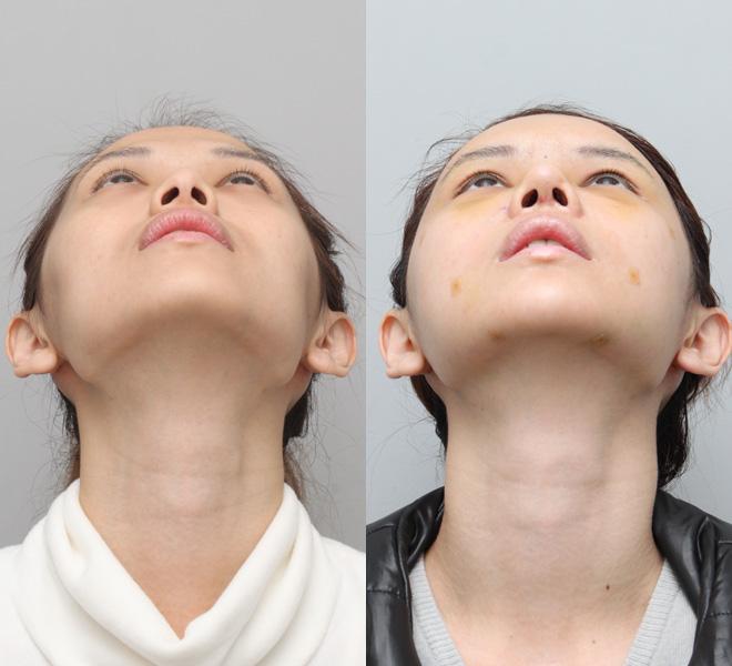 Nâng mũi giúp khuôn mặt đầy đặn và cân đối hơn.