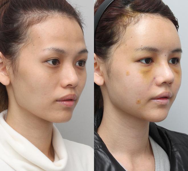 Chiếc mũi gồ đã được thay thế bằng chiếc mũi hoàn hảo như ý.