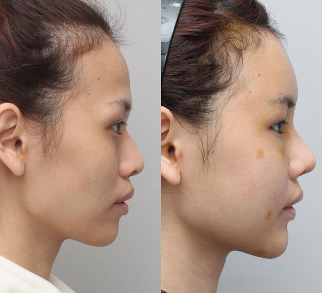 Các đường nét trên khuôn mặt cũng trở nên mềm mại và nữ tính hơn.