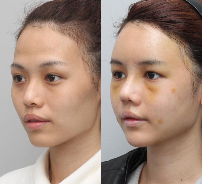 Hình ảnh khuôn mặt khác biệt sau khi nâng mũi.