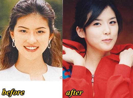 Người đẹp Lee Bo Young đã có một cuộc thay đổi ngoạn mục về nhan sắc sau khi nâng mũi. Một chiếc mũi thấp, ngắn đã được thay thế bằng chiếc mũi cao, thanh thoát.