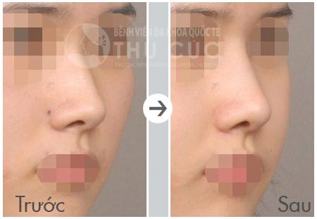 Hình ảnh đáng ngạc nhiên trước và sau khi nâng mũi