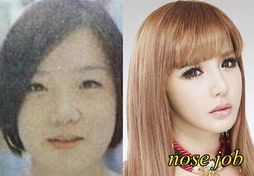 Chiếc mũi của Park Bom trở nên thanh thoát, nhẹ nhàng hơn sau khi nâng mũi S line.