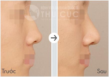 Sau khi nâng mũi, chiếc mũi gồ khiến khuôn mặt kém duyên trở nên thon gọn, cao thẳng.