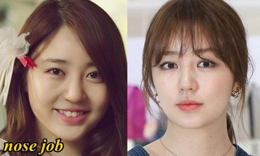 Nàng lọ lem xinh đẹp Yoon Eun Hee cũng sử dụng phương pháp thẩm mỹ nâng mũi S line để có được chiếc mũi cao đẹp như hiện tại.