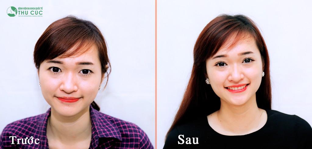 Kết quả bấm mí Hàn Quốc tại thẩm mỹ Thu Cúc Sài Gòn