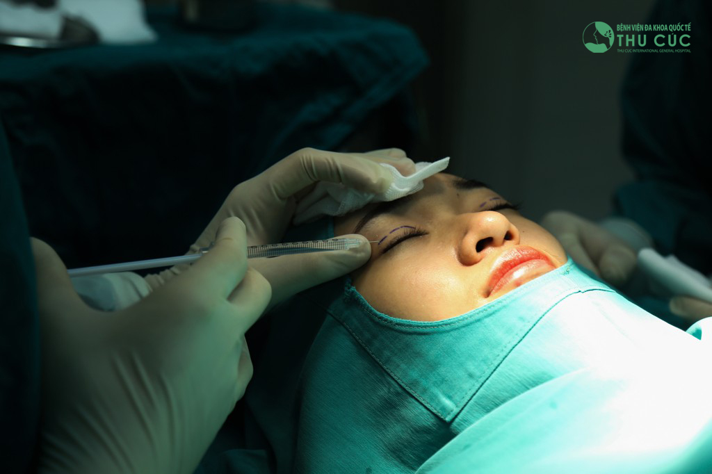Bấm mí Hàn Quốc là một tiểu phẫu rất đơn giản, được các bác sĩ thẩm mỹ Thu Cúc thực hiện nhanh chóng trong chưa đầy 45 phút