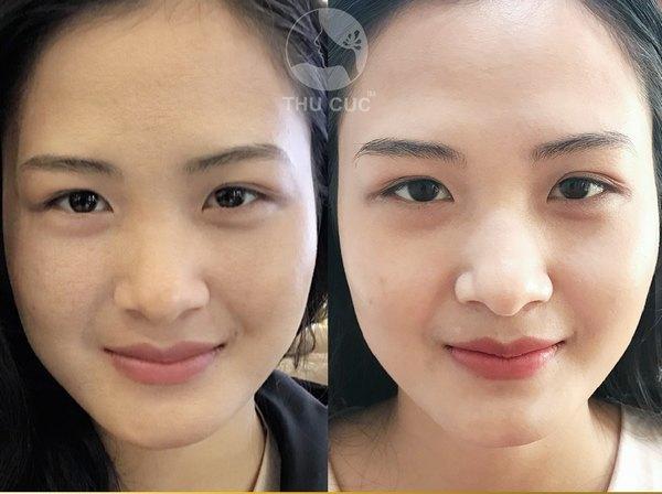 Chỉ sau 1 lần thực hiện, gương mặt của bạn sẽ thay đổi rõ nét, tươi sáng và trẻ trung hơn
