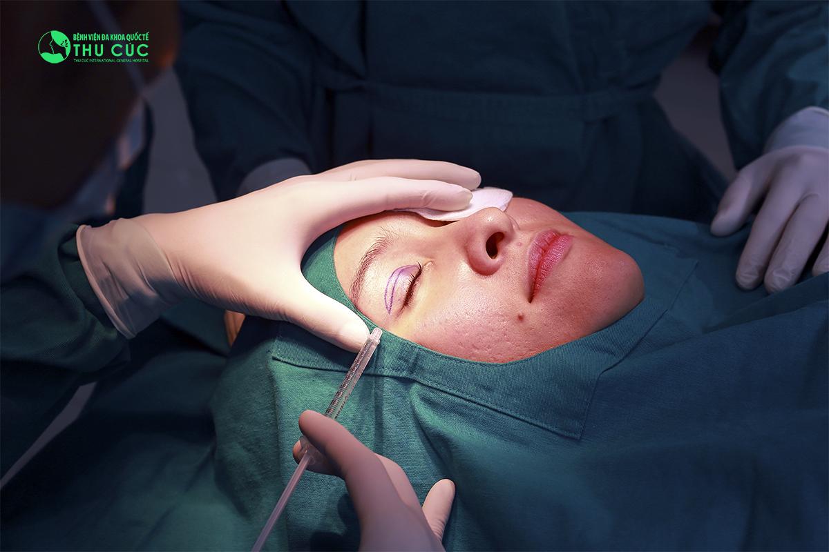 Trước khi thực hiện thao tác cắt mí, bác sĩ sẽ gây tê cục bộ vùng mắt cho khách hàng