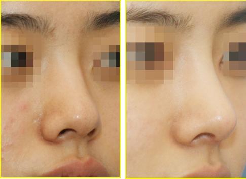 Sự kết hợp hài hòa giữa hai chất liệu chính là điều khiến cho phương pháp nâng mũi bọc sụn trở nên khác biệt.