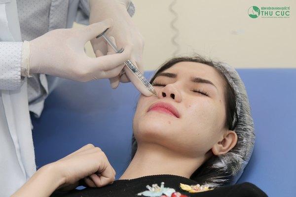 Địa chỉ nâng mũi không phẫu thuật an toàn