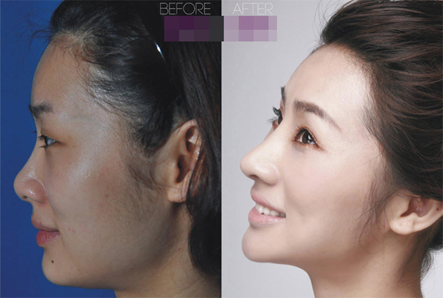 Gao Shanshan là cô gái sở hữu mọt đại lý mỹ phẩm 28 tuổi. Cô gái này đã trải qua phẫu thuật nâng mũi và sự thay đổi ngoại hình sau phẫu thuật khiến nhiều người ngạc nhiên.