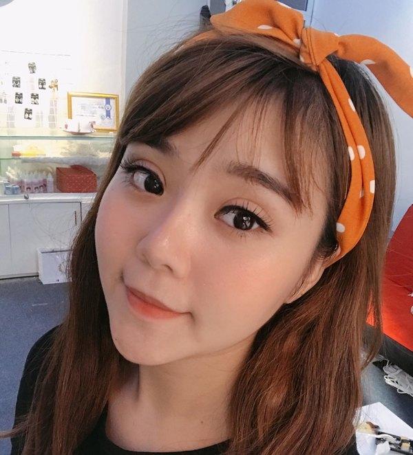 Bấm mí Hàn Quốc cho đôi mắt 2 mí tự nhiên như thật