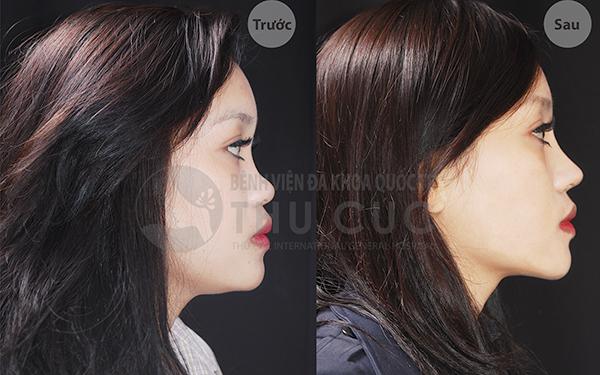 Hình ảnh trước sau phẫu thuật nâng mũi S line tại Thu Cúc