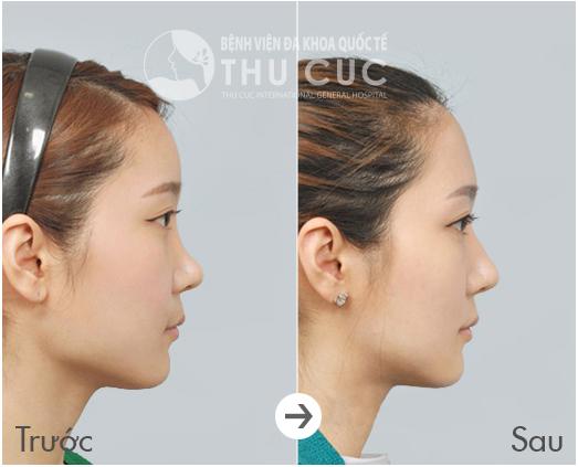 Với chiếc mũi S - line hoàn hảo, gương mặt của bạn trở nên thanh thoát, sang trọng hơn rất nhiều
