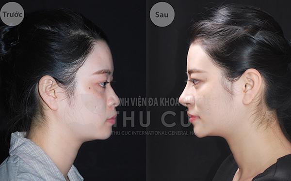 Sự kết hợp hoàn hảo giữa sụn nhân tạo cho phần sống mũi và sụn tự thân cho phần đầu mũi giúp chiếc mũi có vẻ đẹp tự nhiên, ngăn chặn tình trạng đầu mũi bị bóng đỏ, thô cứng sau phẫu thuật