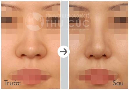 Cánh mũi to sẽ được thu nhỏ lại gọn gàng, tạo sự thanh thoát cho gương mặt