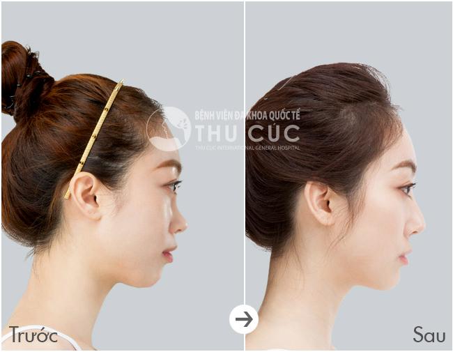 Nâng mũi S-line là phương pháp kết hợp nhiều nhất các tạo hình từ đầu mũi, sống mũi, tới chân mũi, sụn vách ngăn