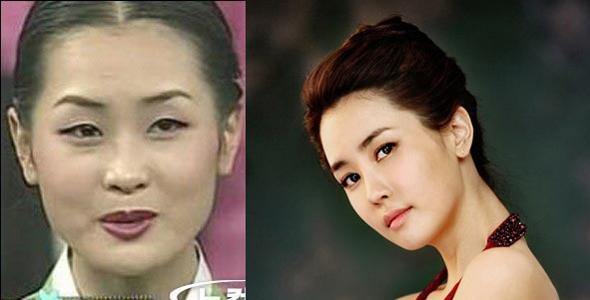 Từng tham dự cuộc thi sắc đẹp chưa qua chỉnh sửa nhưng bây giờ Lee Da Hae đã sở hữu vẻ xinh đẹp hoàn hảo với chiếc mũi thon gọn hơn nhiều.
