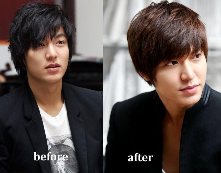 Khi nhắc đến nâng mũi S line thì không thể không kể đến chàng công tử điển trai Lee Min Ho. So với ảnh hồi nhỏ thì bây giờ anh chàng này nam tính và quyến rũ hơn nhiều.