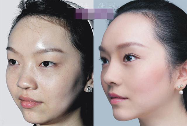 Cô sinh viên 21 tuổi Lin Wen đã sửa mũi, phẫu thuật mắt hai mí. Cô ngày càng trở nên nữ tính và xinh đẹp hơn rất nhiều.