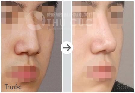 Trước và sau nâng mũi cho nam giới tại Thu Cúc