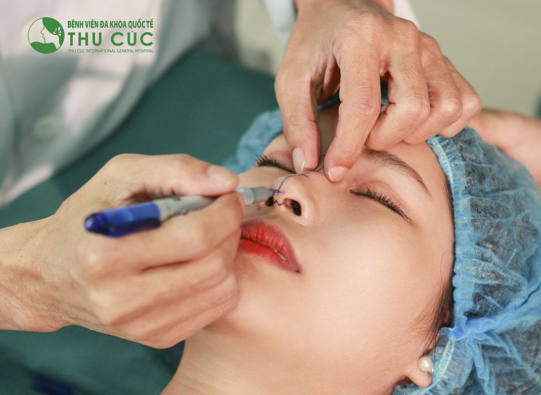 Phương pháp nâng mũi bọc sụn có thể khắc phục hoàn toàn tình trạng mũi bóng đỏ sau phẫu thuật