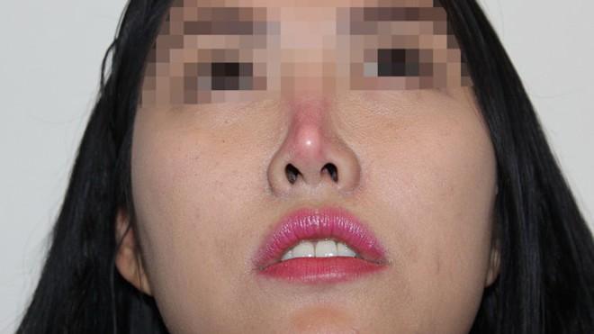 Nhiều người gặp phải tình trạng đầu mũi bị bóng đỏ, mất tự nhiên sau phẫu thuật nâng mũi