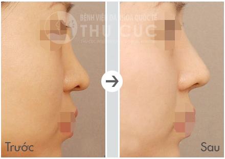 Nâng mũi bọc sụn mang lại chiếc mũi cao thẳng, có độ dốc tự nhiên.