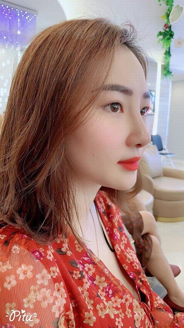 Dáng mũi Sline là dáng mũi được đánh giá là phù hợp nhất với người Việt Nam