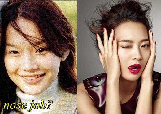 """Shin Min Ah – nữ diễn viên nổi tiếng nhất trong bộ phim """"Bạn gái tôi là hồ ly"""" cũng được đánh giá là người có ngoại hình thay đổi tích cực hơn sau khi nâng mũi S line."""