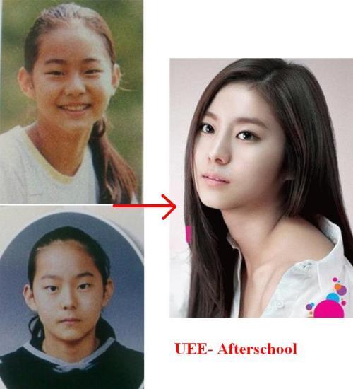 Người đẹp với đôi chân chuẩn nhất xứ Hàn, là ca sĩ nhóm After School, Uee cũng thừa nhận đã từng nâng mũi S line.