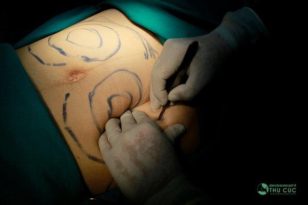 Bác sĩ Thu Cúc chuẩn bị các thao tác cần thiết trước khi tiến hành hút mỡ