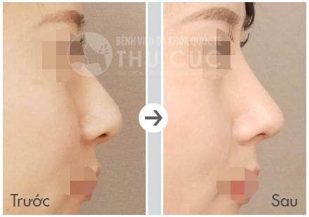 Nâng mũi S line tại Thu Cúc mang lại chiếc mũi thon gọn, đầu mũi nhỏ, hình chữ A cân xứng và lỗ mũi hình hạt chanh xinh xắn.